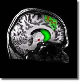 Томограмма. Связь между дополнительной моторной областью (ДМО) и полосатым телом (striatum)