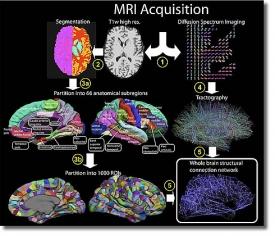 Исследование связей мозга с помощью МРТ