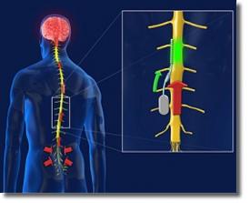 Новый имплантант позвоночника блокирует нервные имульсы