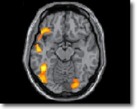Самые загруженные области мозга при чтении
