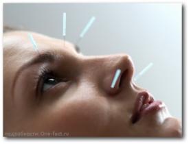 Положительный отзыв на процедуру иглоукалывания — эффект самовнушения