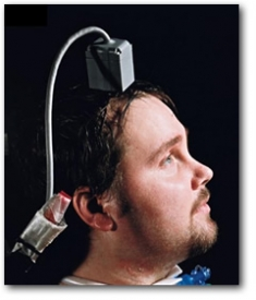 Метт Нэгл с 96-контактным имплантатом
