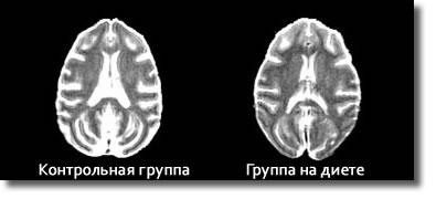 Скан мозга двух макак
