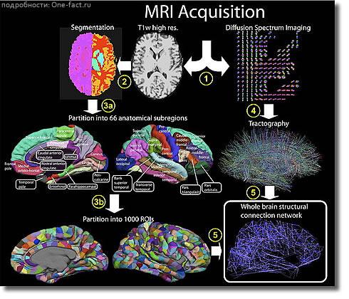 Мозг и МРТ