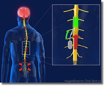 Имплантат позвоночника блокирует нервные имульсы