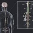 Разработан управляемый имплантант позвоночника, который может блокировать боль…
